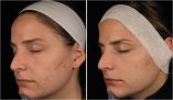 Before and after Silkpeel treatment